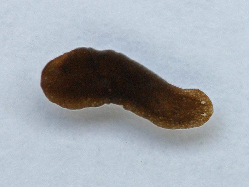 Braunes sperma